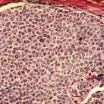 Diagnóstico de câncer: a necessidade de impulsionar a técnica Raman