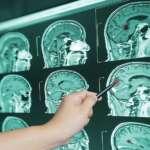 Como o coronavírus afeta o cérebro: O declínio da inteligência após a doença é um processo reversível!